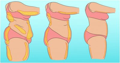3 Health Benefits of Liposuction