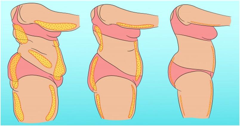 3 Health Benefits of Liposuction